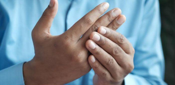 Artritis Reumatoide: Se puede tener una vida normal siguiendo un tratamiento y controles adecuados
